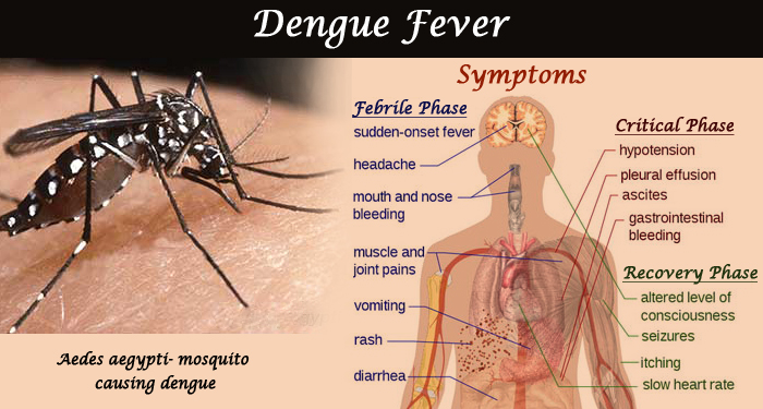 Image result for dengue fever