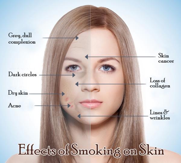 влияет ли курение на кожу лица отзывы Народные