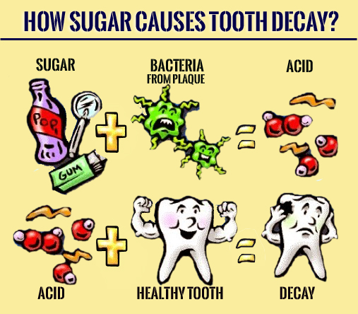 How Sugar is Responsible for Tooth Decay?