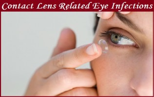 Contact Lens Related Eye Infections